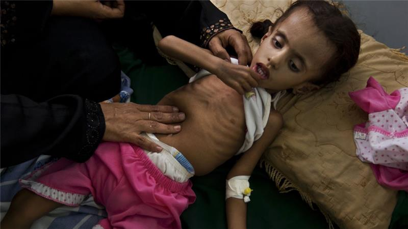 Yemen war: 'My children are starving to death'