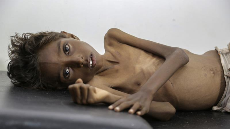 Yemen's children starve as war drags on