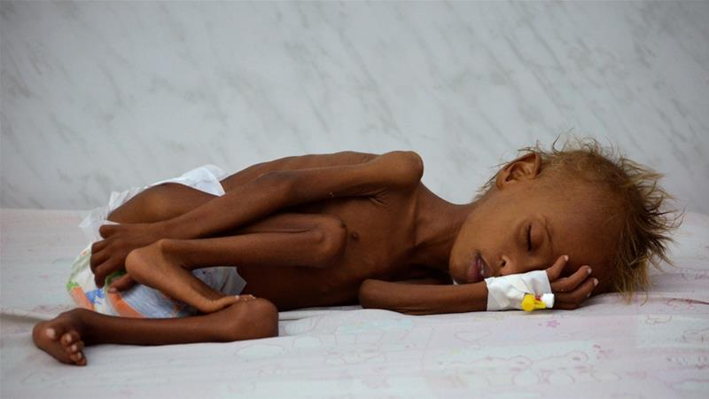 Starving Yemenis resort to eating rubbish