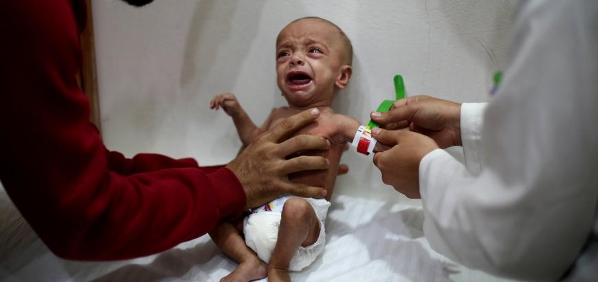 سوريا: سكان الغوطة الشرقية يعانون من حصار وتجويع كارثي من قبل النظام