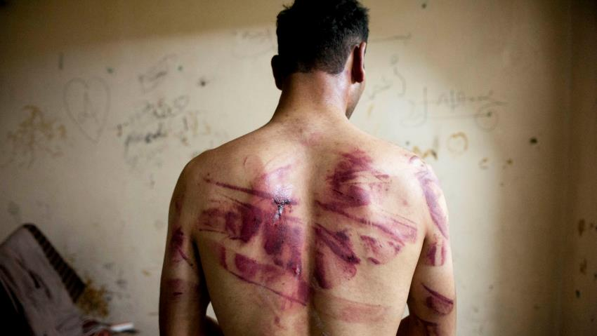 Libya: New project launched to document cases of torture victims in the country